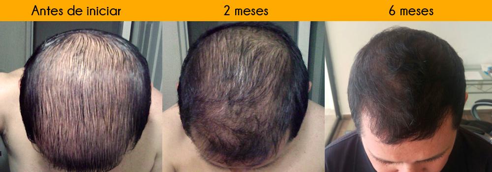 Fussion Hair Tratamiento Regeneración Capilar | Caida de cabello