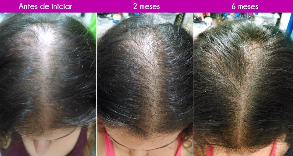 Fussion Hair Tratamiento Regeneración Capilar   Caida de cabello
